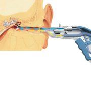Система для промывания ушной полости - принцып работы